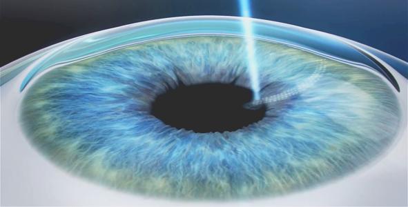 Computerised imagery of lasik surgery on eye close-up